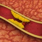 Kako holesterol vpliva na naše zdravje